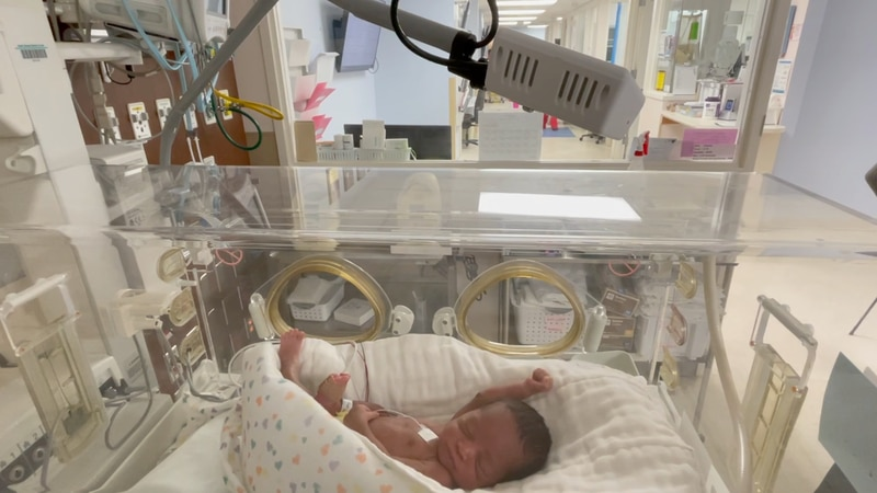 The cameras are located in different departments. It can be found in the newborn intensive care...