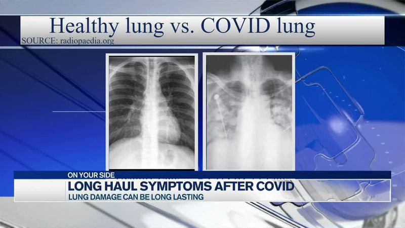 Long haul symptoms after COVID-19